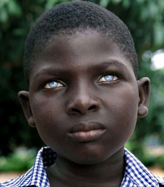 Amazing People: 20 Amazing Pictures Of Black People With Blue Eyes