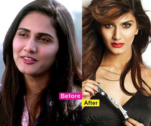 vaani-kapoor-before-and-after-lip-surgery Vaani Kapoor Pics - 30 Cutest Pictures of Vaani Kapoor