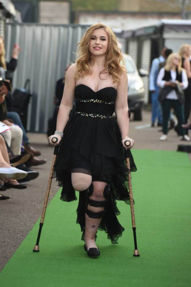 6 Top 10 Disabled Female Models From World You Must Know