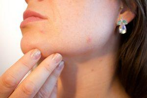 The Pros and Cons of Using Hydroquinone Creams