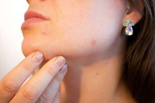 1_Woman-with-acne-issues-500x333 The Pros and Cons of Using Hydroquinone Creams